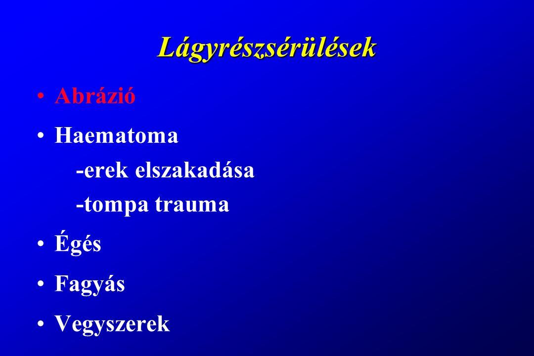 Zygomaticomaxillaris törés Járomcsonttörés tünetei & malocclusio Th: lemezes osteosynthesis -FZ sutura -maxilla elülső fala
