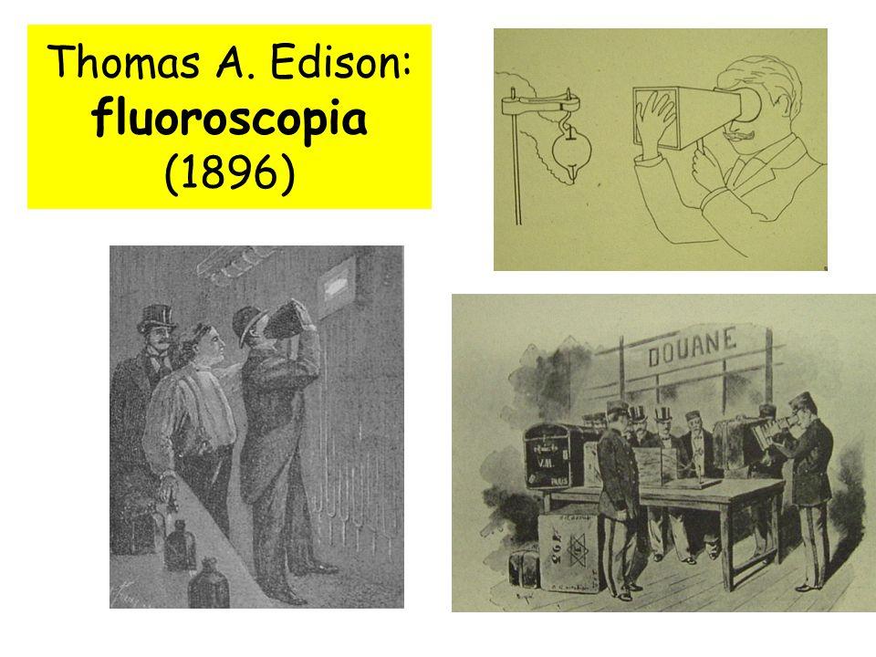 Thomas A. Edison: fluoroscopia (1896)