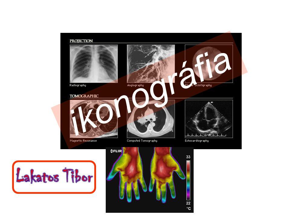 Tumor vesicae urinariae hydronephrosis ureter occlusio