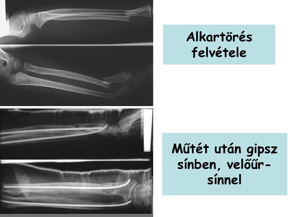Alkartörés felvétele Műtét után gipsz sínben, velőűr- sínnel