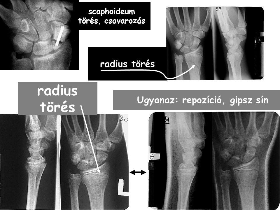 radius törés Ugyanaz: repozíció, gipsz sín scaphoideum törés, csavarozás radius törés