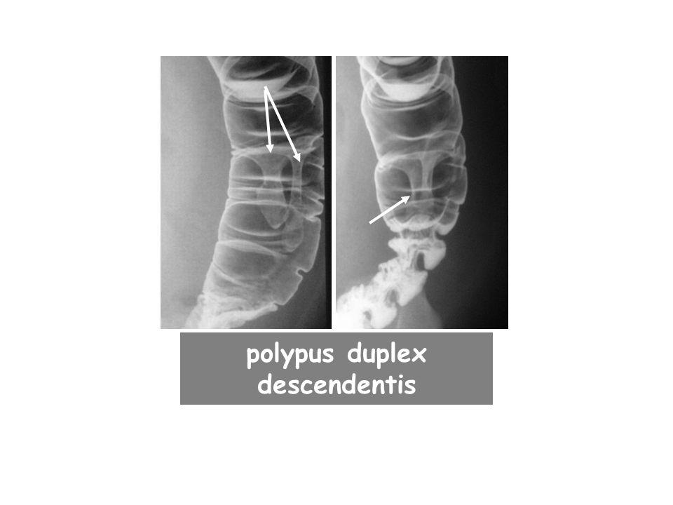 polypus duplex descendentis
