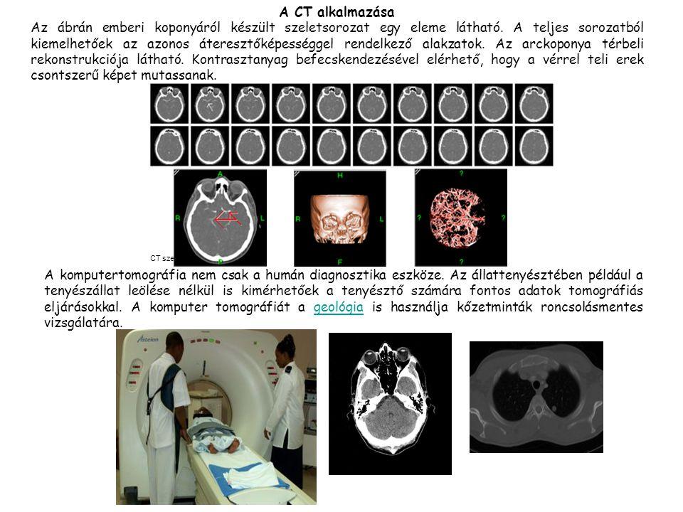 Erek Csont CT szelet A komputertomográfia nem csak a humán diagnosztika eszköze. Az állattenyésztében például a tenyészállat leölése nélkül is kimérhe