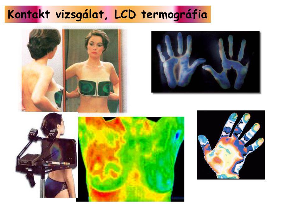 Kontakt vizsgálat, LCD termográfia
