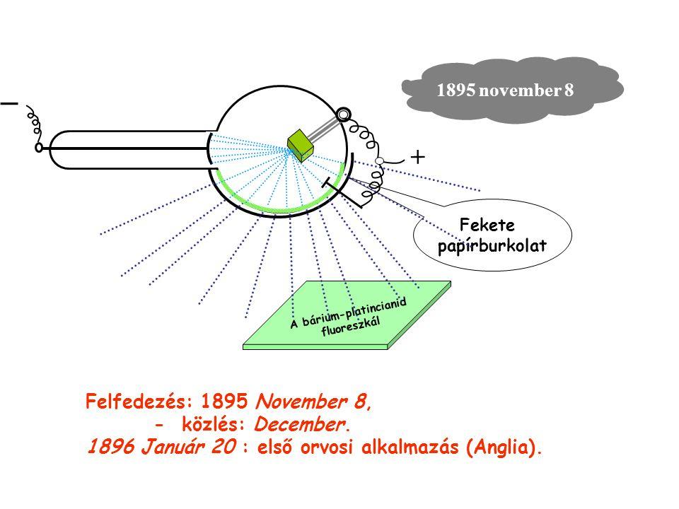 _ 1895 november 8 A bárium-platincianid fluoreszkál Fekete papírburkolat + Felfedezés: 1895 November 8, - közlés: December. 1896 Január 20 : első orvo
