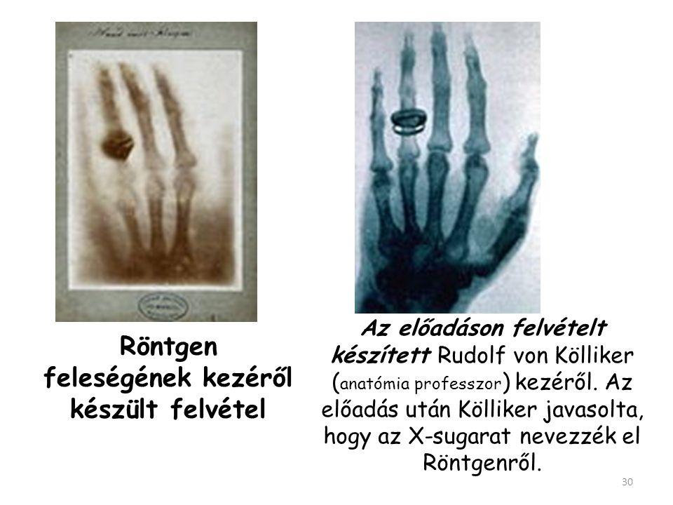 18961896. január 23-án a würzburgi intézetben a Fizikai-Orvosi Társulat előtt számolt be felfedezéséről.január 23-ánwürzburgi 29