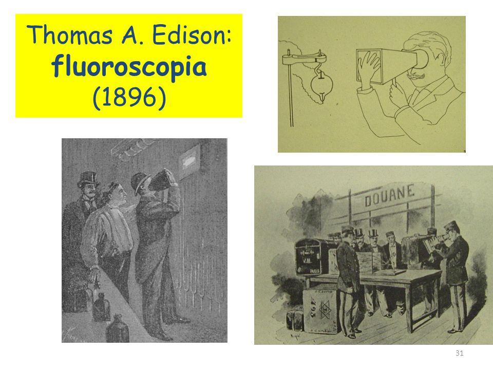 Röntgen feleségének kezéről készült felvétel Az előadáson felvételt készített Rudolf von Kölliker ( anatómia professzor ) kezéről. Az előadás után Köl