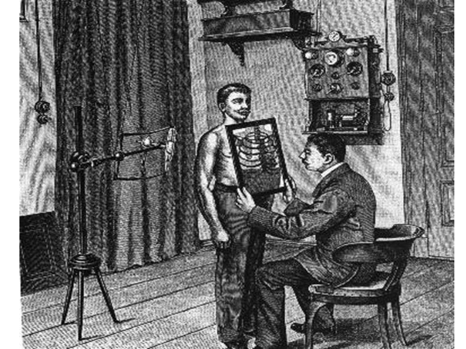 Hipotézis kísérlet Felfedezés : 1895 November 8, - közlés :1895 December. első orvosi alkalmazás (Anglia):1896 Január 20 Egy éven belül (!) már a nagy