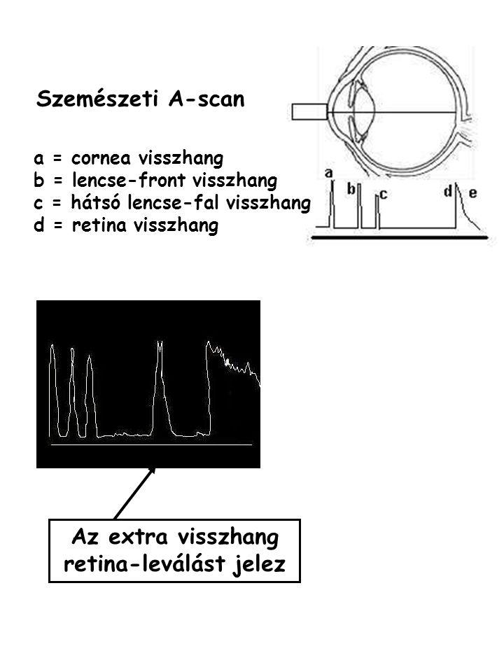 a = cornea visszhang b = lencse-front visszhang c = hátsó lencse-fal visszhang d = retina visszhang Az extra visszhang retina-leválást jelez Szemészet