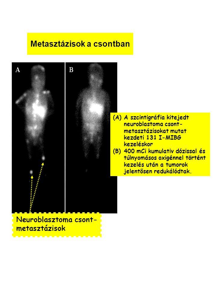 Metasztázisok a csontban Neuroblasztoma csont- metasztázisok (A)A szcintigráfia kitejedt neuroblastoma csont- metasztázisokat mutat kezdeti 131 I-MIBG kezeléskor (B)400 mCi kumulativ dózissal és túlnyomásos oxigénnel történt kezelés után a tumorok jelentősen redukálódtak.