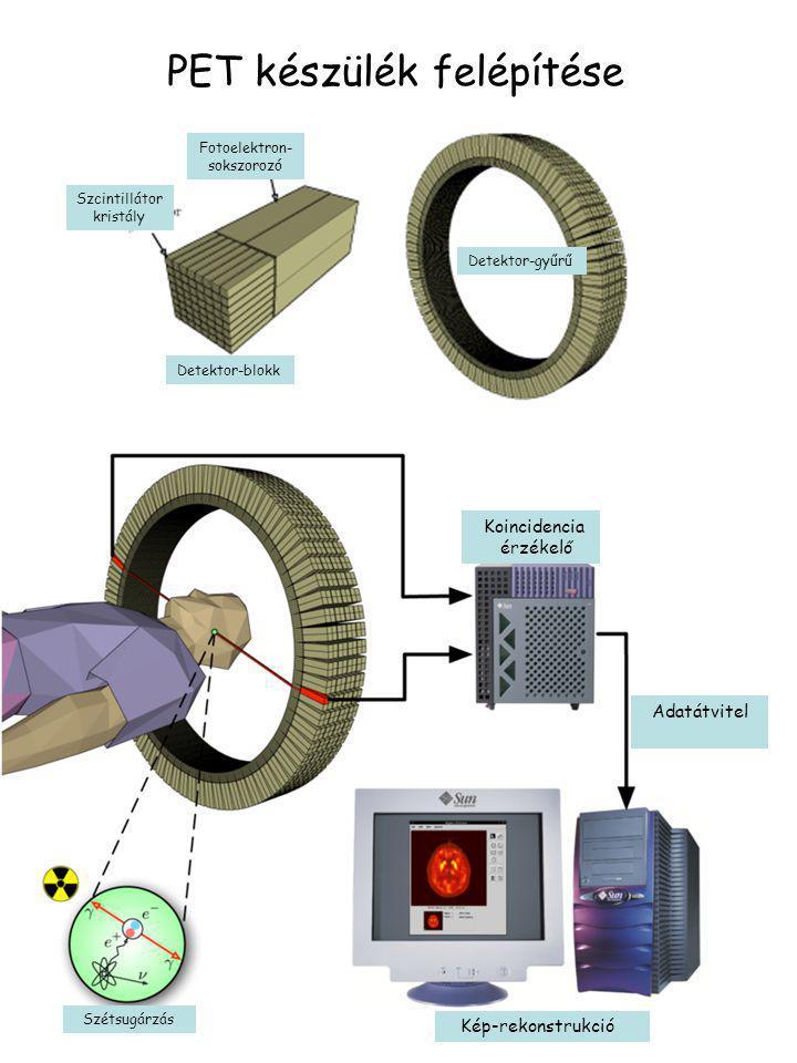 PET készülék felépítése Fotoelektron- sokszorozó Szcintillátor kristály Detektor-blokk Detektor-gyűrű Koincidencia érzékelő Adatátvitel Kép-rekonstruk