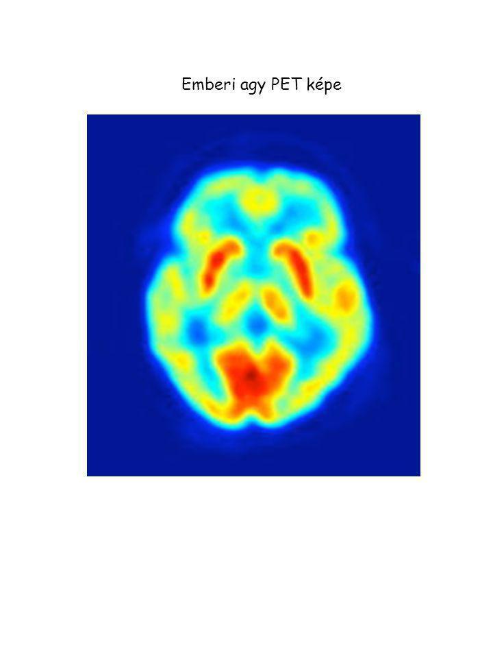 Emberi agy PET képe