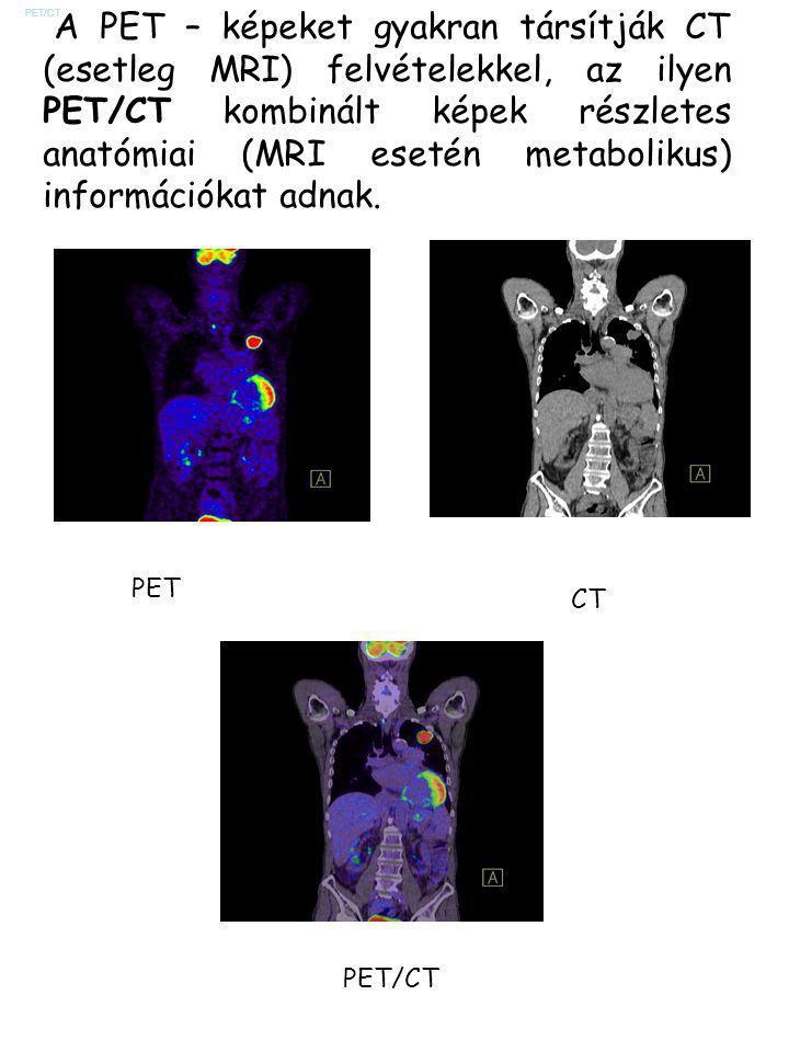 PET/CT A PET – képeket gyakran társítják CT (esetleg MRI) felvételekkel, az ilyen PET/CT kombinált képek részletes anatómiai (MRI esetén metabolikus)