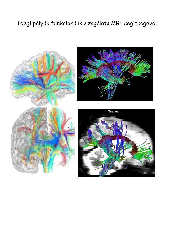 Idegi pályák funkcionális vizsgálata MRI segítségével