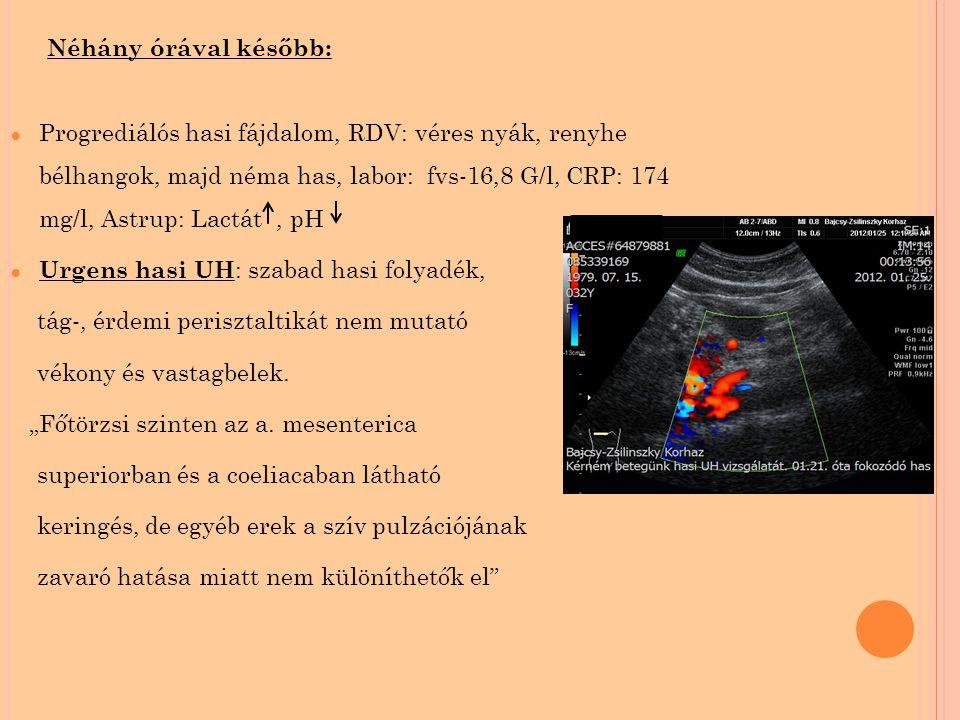 Néhány órával később: ● Progrediálós hasi fájdalom, RDV: véres nyák, renyhe bélhangok, majd néma has, labor: fvs-16,8 G/l, CRP: 174 mg/l, Astrup: Lactát, pH ● Urgens hasi UH : szabad hasi folyadék, tág-, érdemi perisztaltikát nem mutató vékony és vastagbelek.