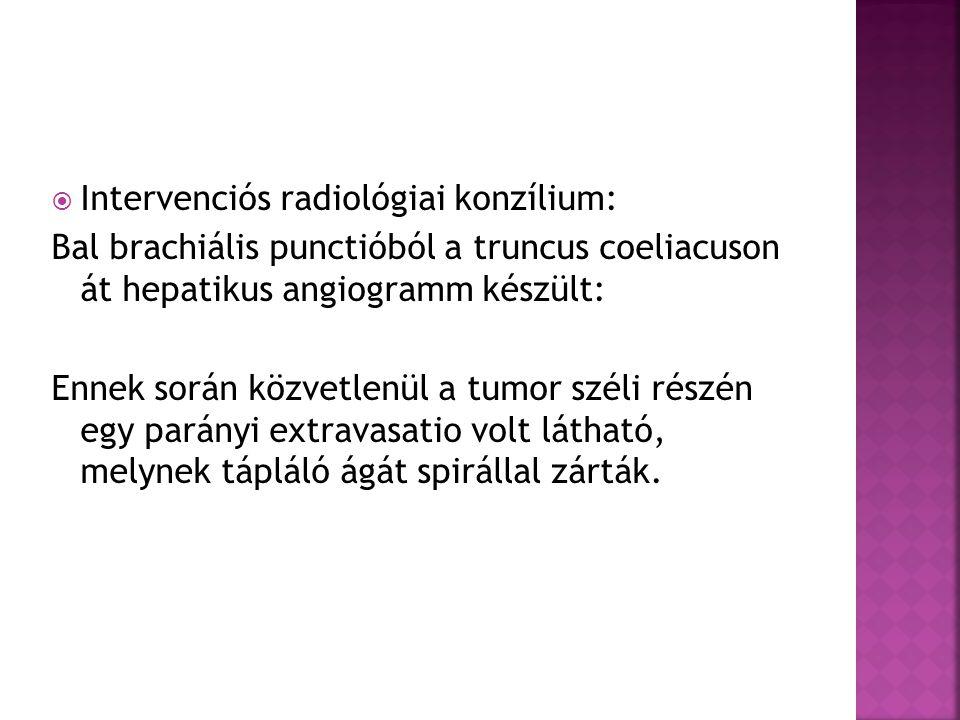  Intervenciós radiológiai konzílium: Bal brachiális punctióból a truncus coeliacuson át hepatikus angiogramm készült: Ennek során közvetlenül a tumor széli részén egy parányi extravasatio volt látható, melynek tápláló ágát spirállal zárták.