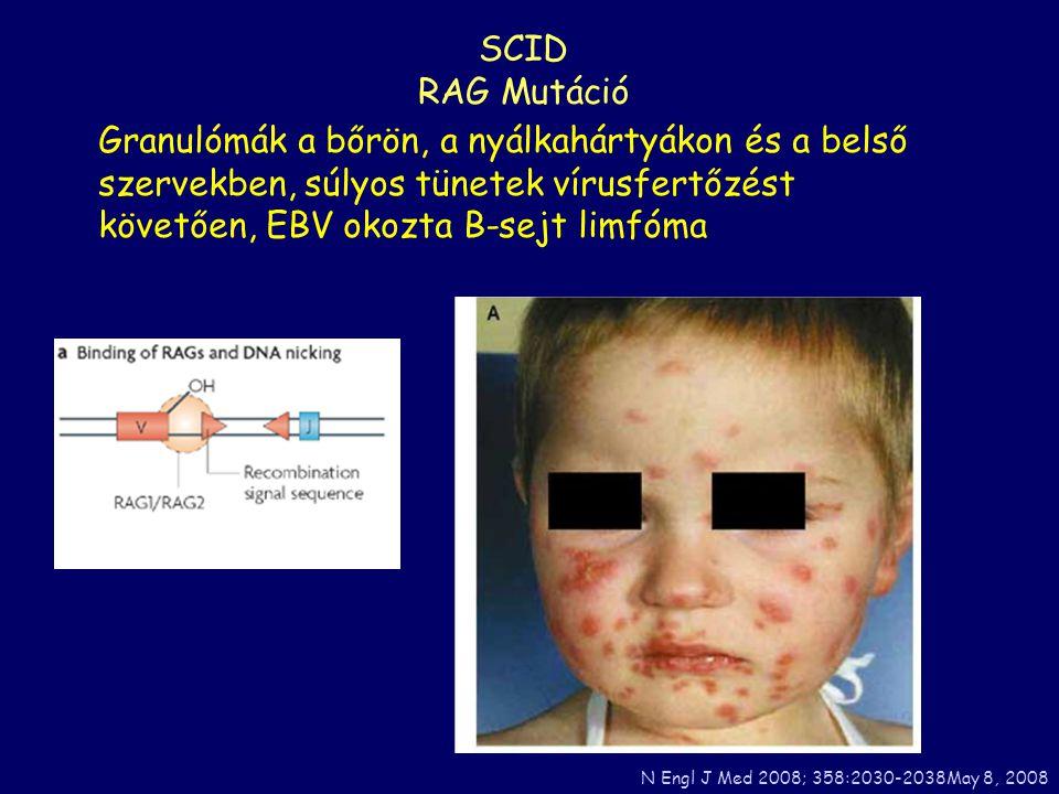 Granulómák a bőrön, a nyálkahártyákon és a belső szervekben, súlyos tünetek vírusfertőzést követően, EBV okozta B-sejt limfóma SCID RAG Mutáció N Engl