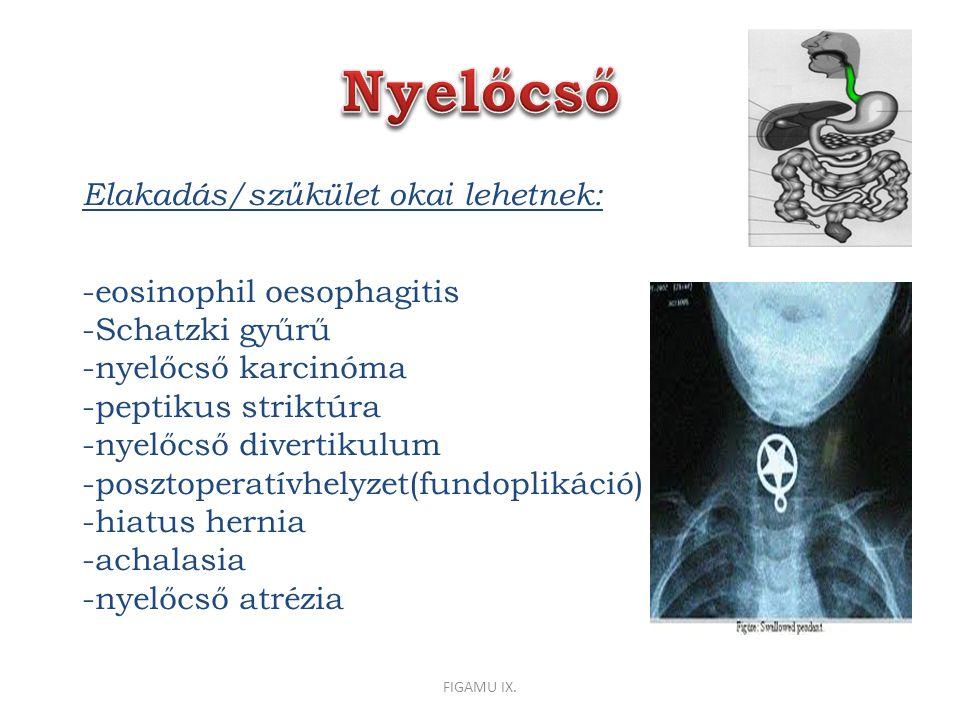 Elakadás/szűkület okai lehetnek: -eosinophil oesophagitis -Schatzki gyűrű -nyelőcső karcinóma -peptikus striktúra -nyelőcső divertikulum -posztoperatívhelyzet(fundoplikáció) -hiatus hernia -achalasia -nyelőcső atrézia FIGAMU IX.