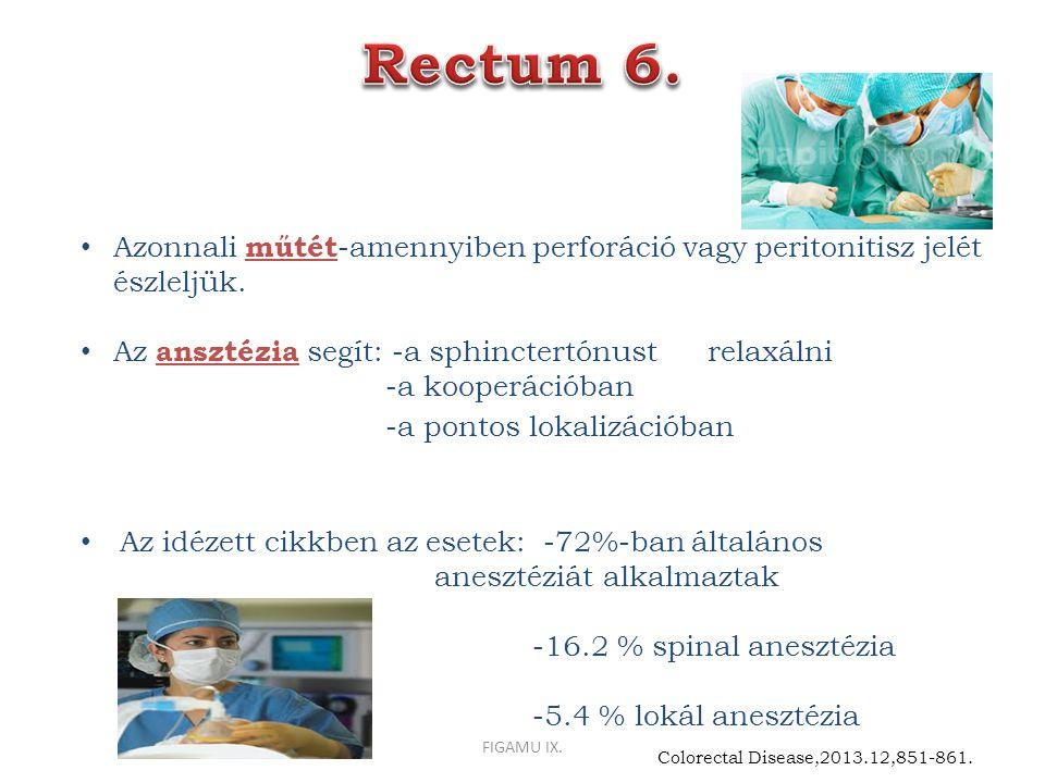 Azonnali műtét -amennyiben perforáció vagy peritonitisz jelét észleljük. Az ansztézia segít: -a sphinctertónust relaxálni -a kooperációban -a pontos l