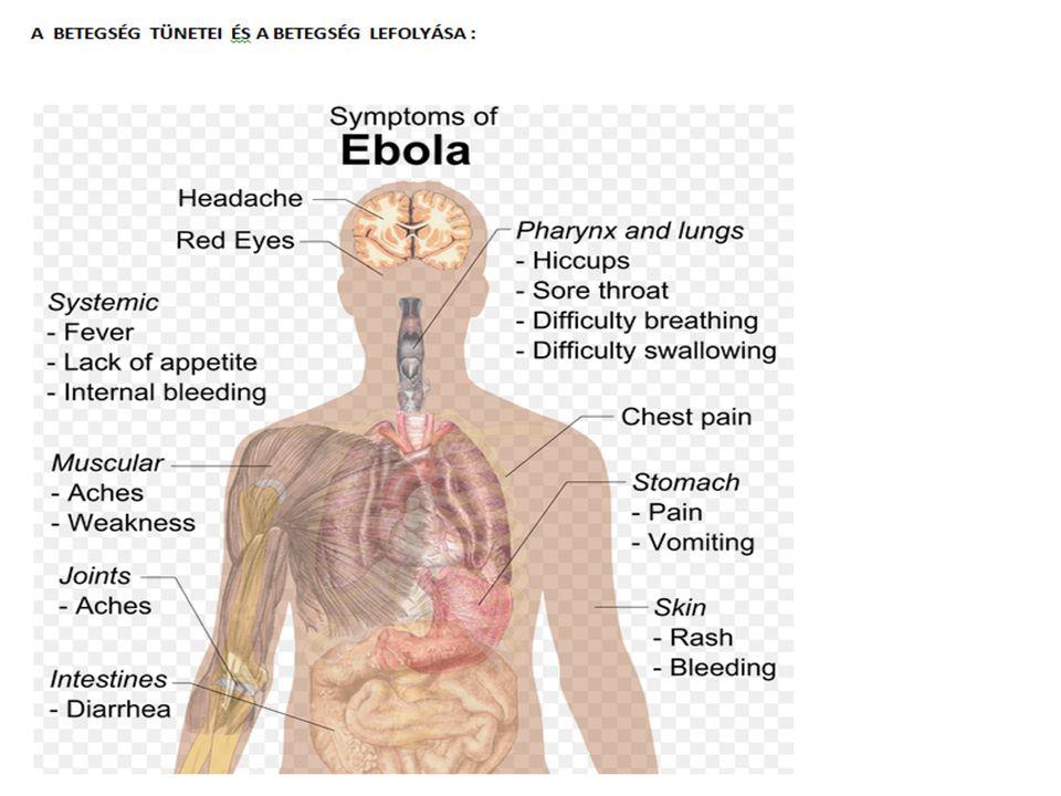 A betegség tünetei,lefolyása