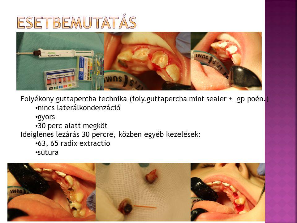 Folyékony guttapercha technika (foly.guttapercha mint sealer + gp poén.) nincs laterálkondenzáció gyors 30 perc alatt megköt Ideiglenes lezárás 30 percre, közben egyéb kezelések: 63, 65 radix extractio sutura