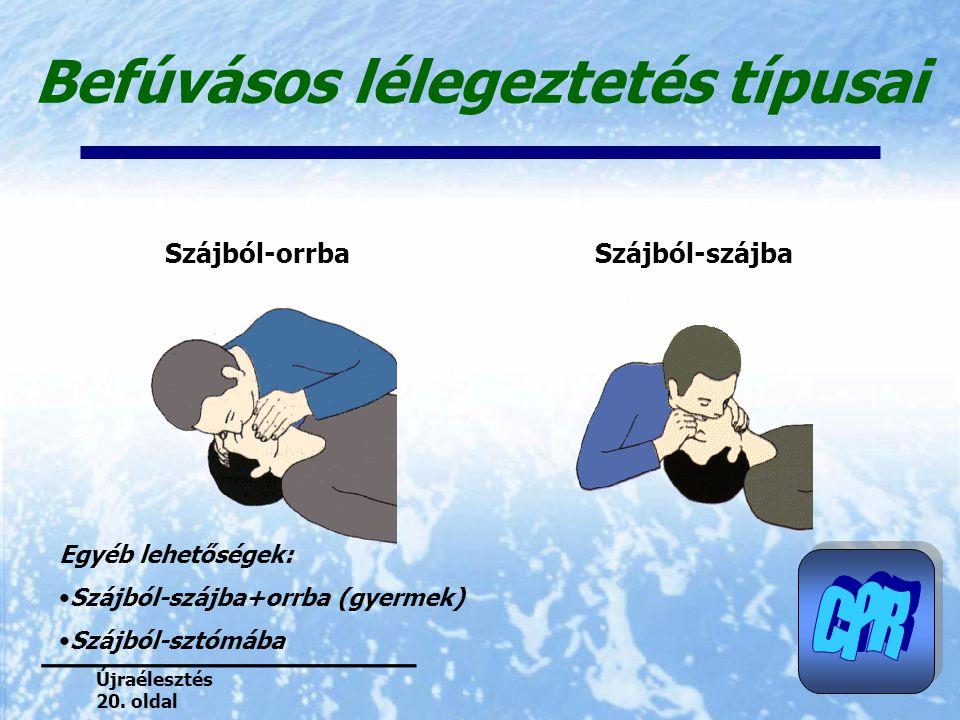 Befúvásos lélegeztetés típusai Szájból-orrbaSzájból-szájba Egyéb lehetőségek: Szájból-szájba+orrba (gyermek) Szájból-sztómába Újraélesztés 20. oldal
