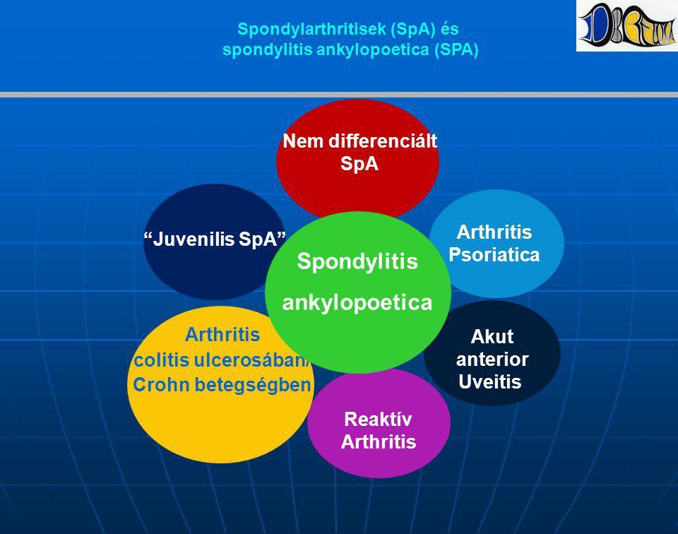 """Juvenilis SpA"" Reaktív Arthritis colitis ulcerosában/ Crohn betegségben Arthritis Psoriatica Nem differenciált SpA Akut anterior Uveitis Spondylitis"