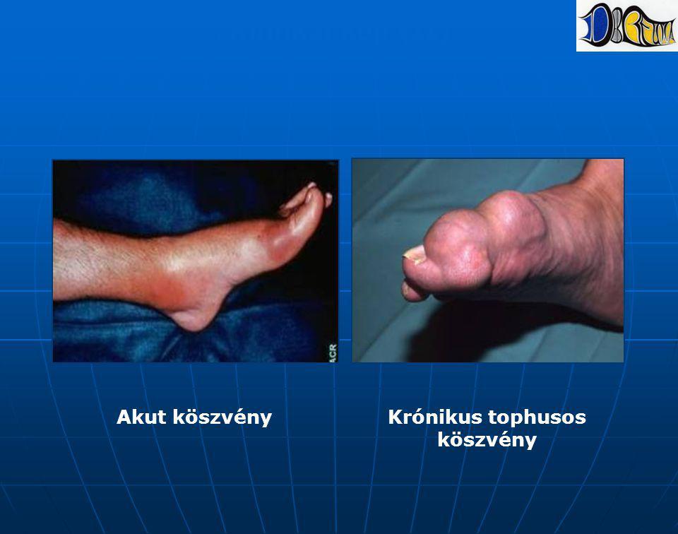 Klinikai kép (II) Akut köszvényKrónikus tophusos köszvény