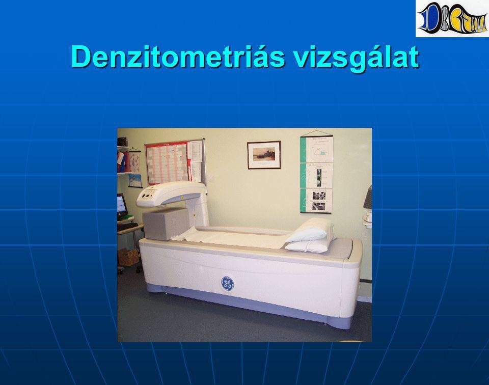 Denzitometriás vizsgálat