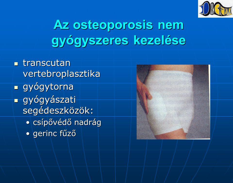 Az osteoporosis nem gyógyszeres kezelése transcutan vertebroplasztika transcutan vertebroplasztika gyógytorna gyógytorna gyógyászati segédeszközök: gy