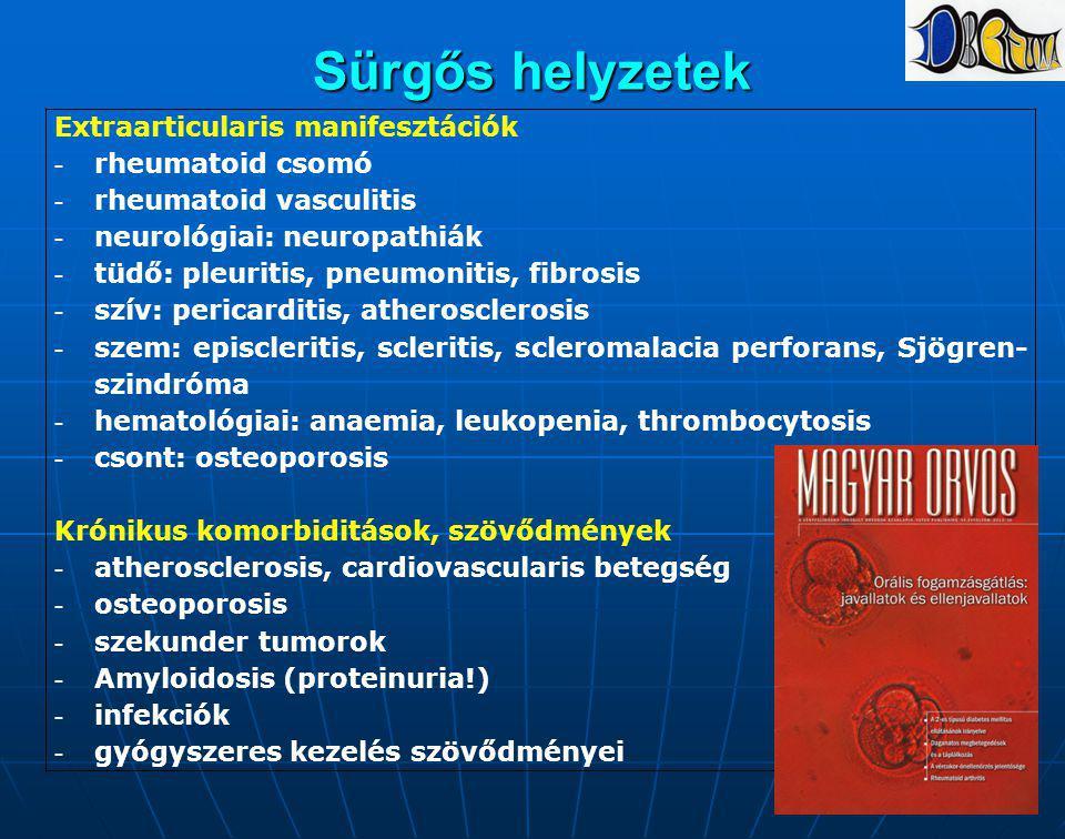Sürgős helyzetek Extraarticularis manifesztációk -rheumatoid csomó -rheumatoid vasculitis -neurológiai: neuropathiák -tüdő: pleuritis, pneumonitis, fi