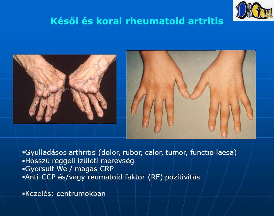 Késői és korai rheumatoid artritis  Gyulladásos arthritis (dolor, rubor, calor, tumor, functio laesa)  Hosszú reggeli ízületi merevség  Gyorsult We