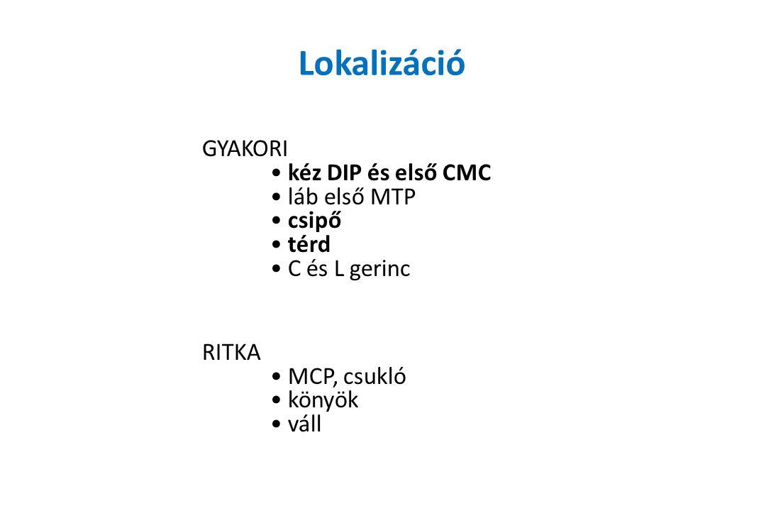 Lokalizáció GYAKORI kéz DIP és első CMC láb első MTP csipő térd C és L gerinc RITKA MCP, csukló könyök váll