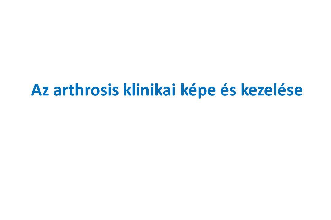 Az arthrosis klinikai képe és kezelése