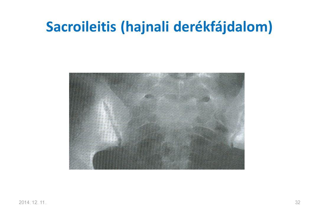Sacroileitis (hajnali derékfájdalom) 2014. 12. 11.32
