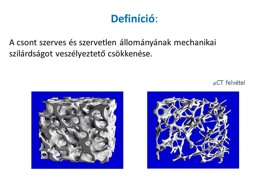 Definíció: A csont szerves és szervetlen állományának mechanikai szilárdságot veszélyeztető csökkenése.  CT felvétel