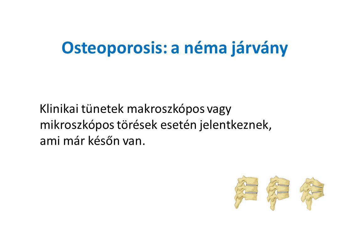 Osteoporosis: a néma járvány Klinikai tünetek makroszkópos vagy mikroszkópos törések esetén jelentkeznek, ami már későn van.