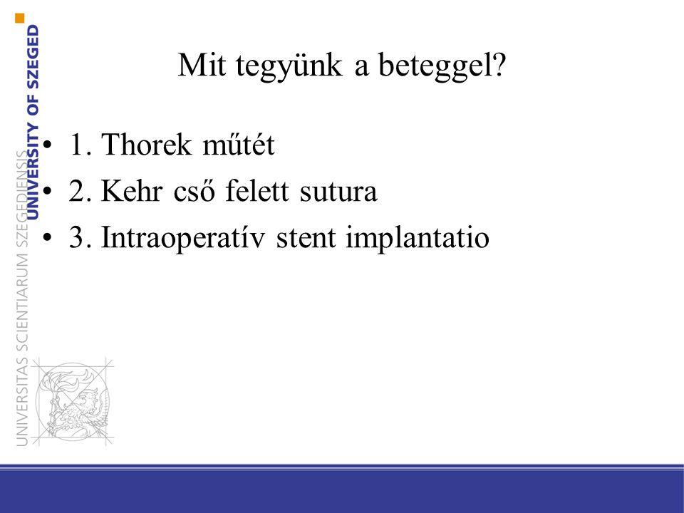 Mit tegyünk a beteggel? 1. Thorek műtét 2. Kehr cső felett sutura 3. Intraoperatív stent implantatio