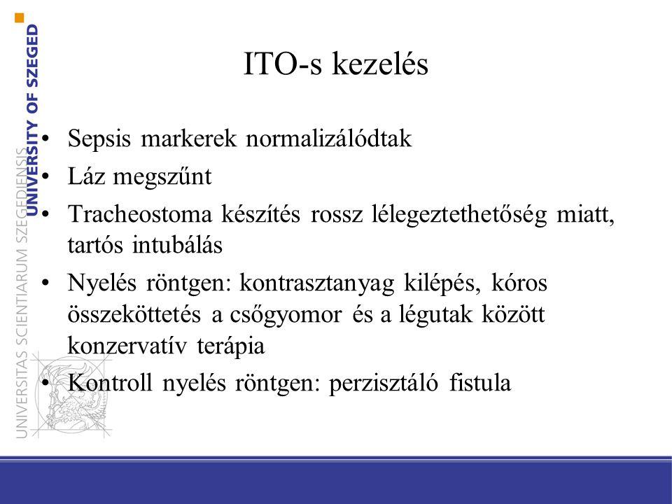 ITO-s kezelés Sepsis markerek normalizálódtak Láz megszűnt Tracheostoma készítés rossz lélegeztethetőség miatt, tartós intubálás Nyelés röntgen: kontrasztanyag kilépés, kóros összeköttetés a csőgyomor és a légutak között konzervatív terápia Kontroll nyelés röntgen: perzisztáló fistula