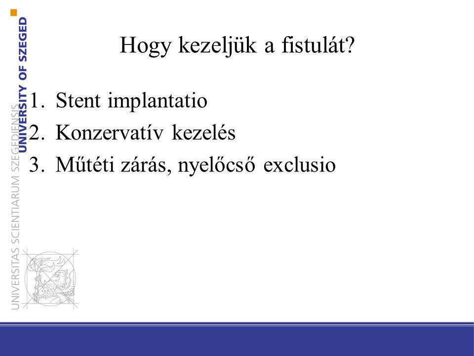 Hogy kezeljük a fistulát? 1.Stent implantatio 2.Konzervatív kezelés 3.Műtéti zárás, nyelőcső exclusio