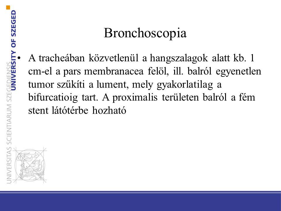 Bronchoscopia A tracheában közvetlenül a hangszalagok alatt kb. 1 cm-el a pars membranacea felöl, ill. balról egyenetlen tumor szűkíti a lument, mely