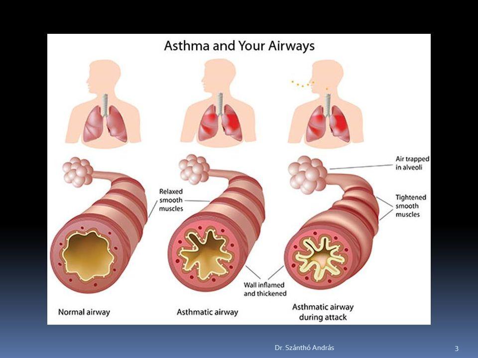 Betegségek nemzetközi osztályozása (BNO)  J45Asthma bronchiale  J45.0Főleg allergiás asztma  J45.1Nem allergiás asztma  J45.8Kevert asztma  J45.9Asthma k.m.n.
