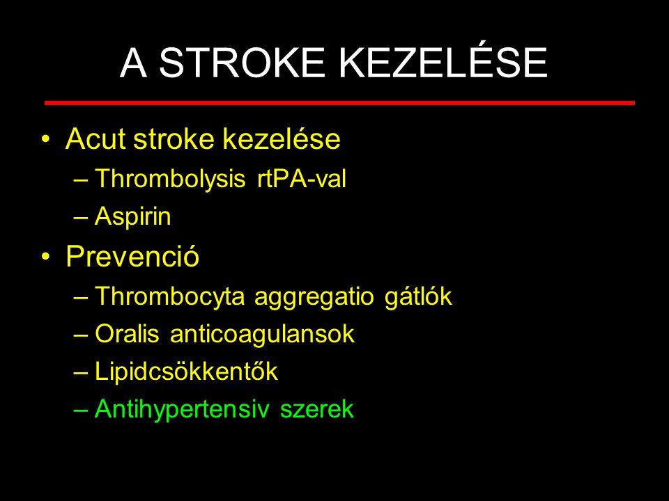 A STROKE KEZELÉSE Acut stroke kezelése –Thrombolysis rtPA-val –Aspirin Prevenció –Thrombocyta aggregatio gátlók –Oralis anticoagulansok –Lipidcsökkent