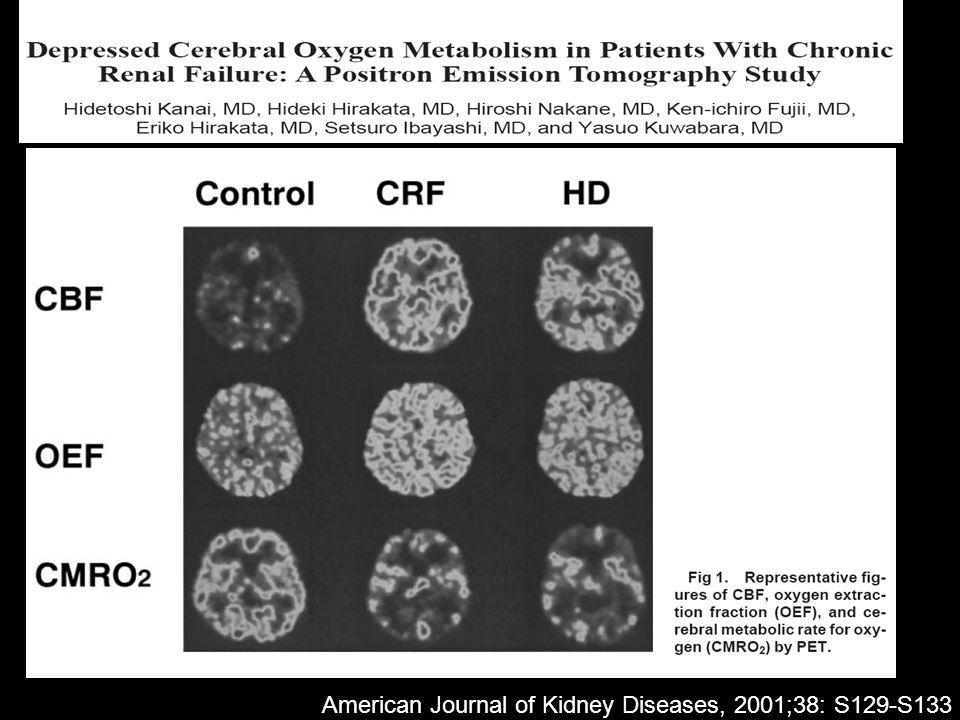 American Journal of Kidney Diseases, 2001;38: S129-S133