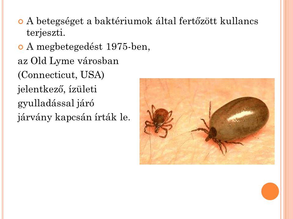 A betegséget a baktériumok által fertőzött kullancs terjeszti. A megbetegedést 1975-ben, az Old Lyme városban (Connecticut, USA) jelentkező, ízületi g