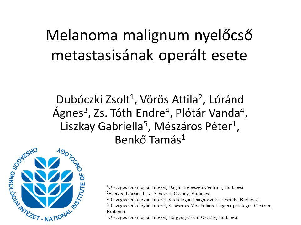 Melanoma malignum nyelőcső metastasisának operált esete Dubóczki Zsolt 1, Vörös Attila 2, Lóránd Ágnes 3, Zs. Tóth Endre 4, Plótár Vanda 4, Liszkay Ga