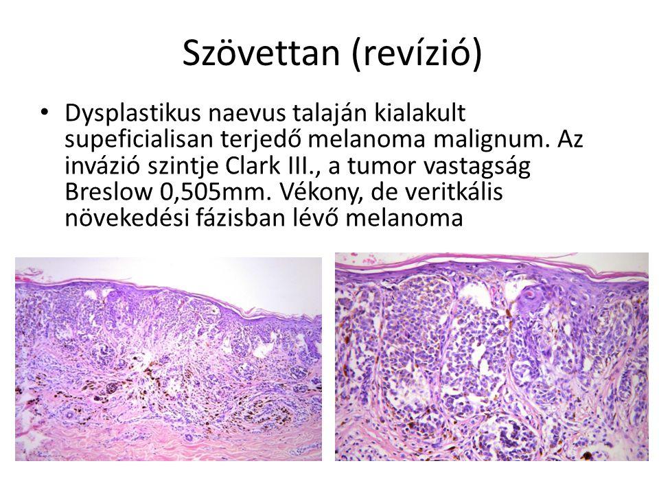 Szövettan (revízió) Dysplastikus naevus talaján kialakult supeficialisan terjedő melanoma malignum. Az invázió szintje Clark III., a tumor vastagság B