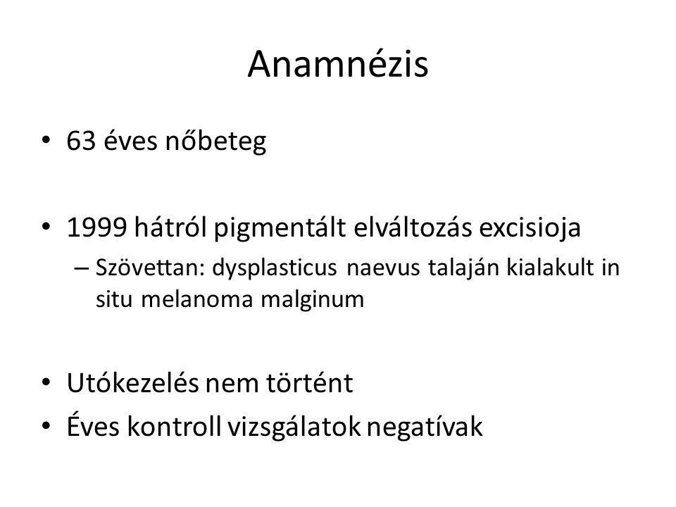 Anamnézis 63 éves nőbeteg 1999 hátról pigmentált elváltozás excisioja – Szövettan: dysplasticus naevus talaján kialakult in situ melanoma malginum Utó