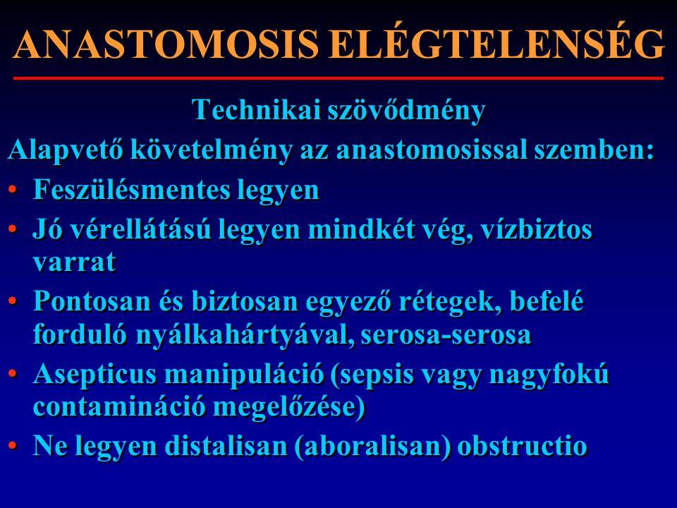 ANASTOMOSIS ELÉGTELENSÉG Technikai szövődmény Alapvető követelmény az anastomosissal szemben: Feszülésmentes legyen Jó vérellátású legyen mindkét vég,