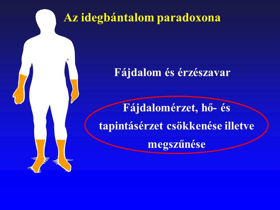 Fájdalomérzet, hő- és tapintásérzet csökkenése illetve megszűnése Fájdalom és érzészavar Az idegbántalom paradoxona